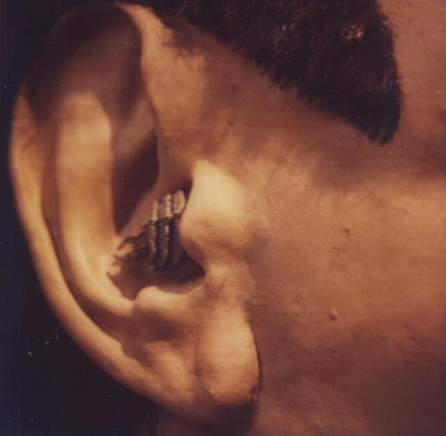 big in ear