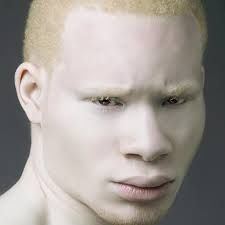 black albino